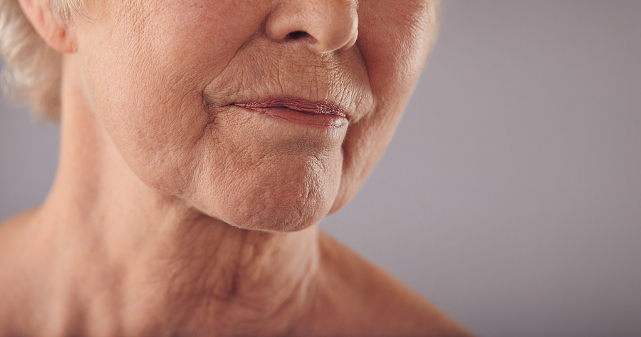 A facelift will not stop the ageing process, but it can slow it down.