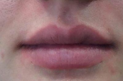 lip dermal fillers before