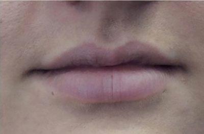 lip dermal fillers after