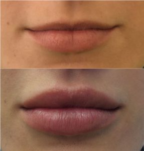 Dermal-Fillers_0001_Layer-0---2