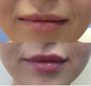 Dermal-Fillers_0002_Layer-0---3