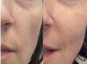 Dermal-Fillers_0005_Layer-0---6