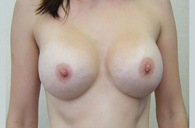 breast augmentation asymmetry after