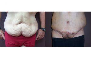 Gynecomastia_0003_4
