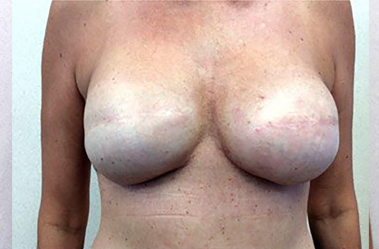 Mastopexy Breast Reconstruction After