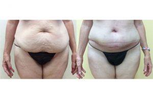 Tummy-Tuck_0001_2