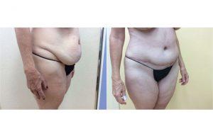 Tummy-Tuck_0002_3