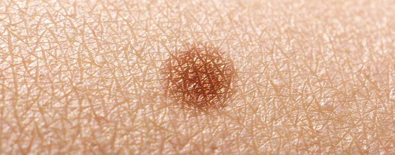 Non-melanoma skin cancer