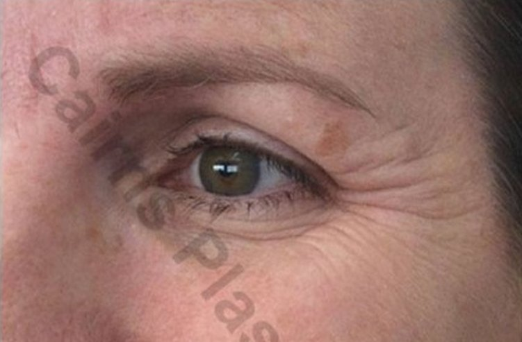 anti wrinkle treatments before