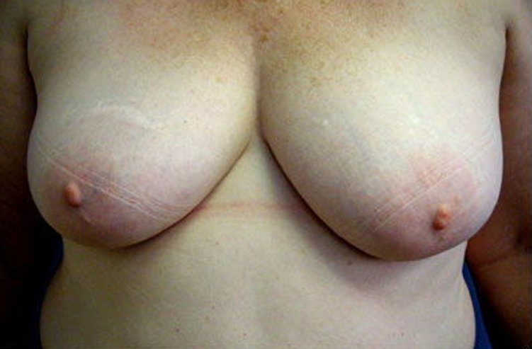 Mastopexy Breast Reconstruction Before