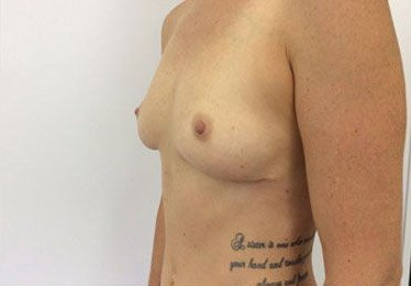 Breast Implant Removal After
