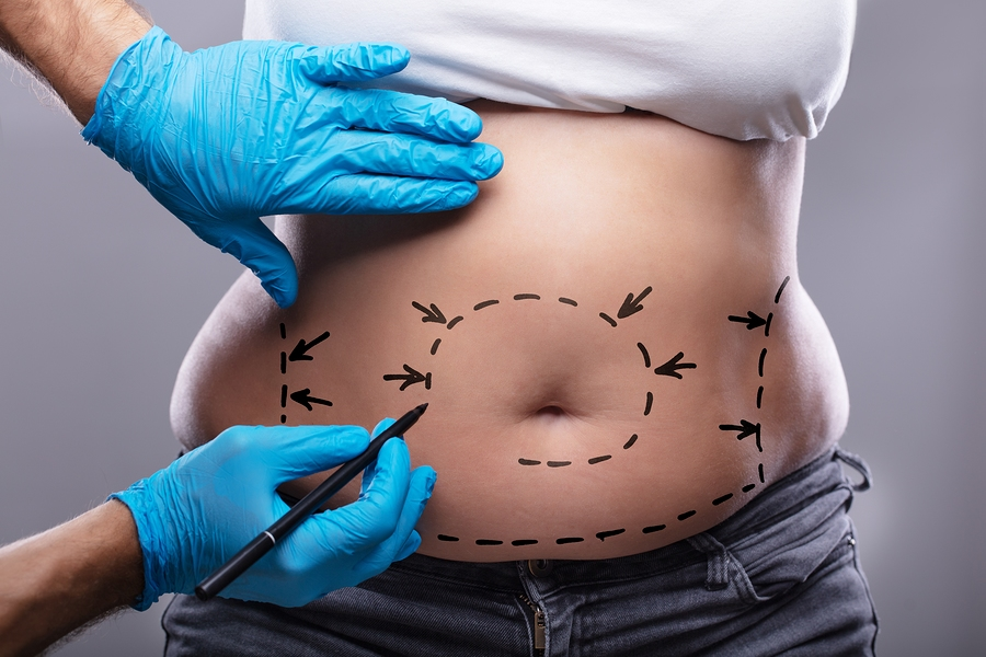 Find out everything you need to know about tummy tuck surgery