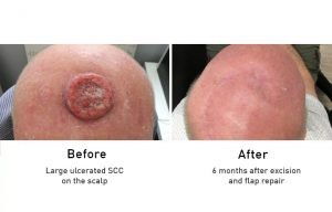 Skin Cancer: Large ulcerated SCC on the scalp before and after surgery