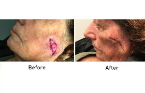 Skin Cancer before and after surgery