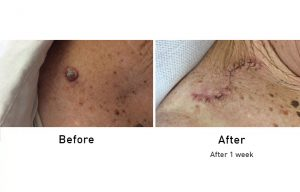 Skin Cancer before and after 1 week surgery
