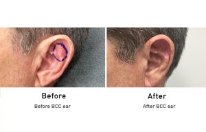 Skin Cancer: BCC ear before and after surgery