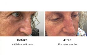 Skin Cancer: SEBK Nose before and after 6 week surgery