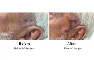 Skin Cancer: Left Temple before and after surgery