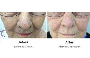Skin Cancer: BCC Nose before and after surgery