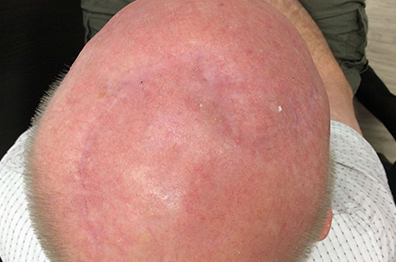 Skin cancer: Large ulcerated SCC on the scalp after surgery