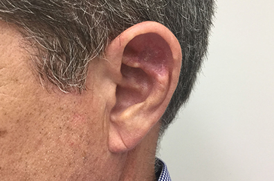 Skin cancer: BCC Ear after surgery