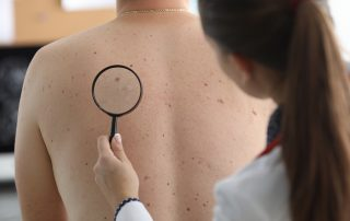 Skin cancer plastic surgery